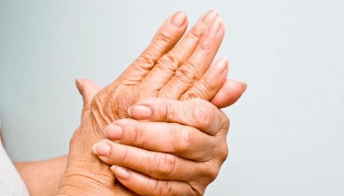 Revma | Příčiny, příznaky, léčba