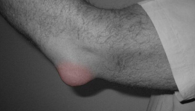 Bursitida – zánět tíhového váčku