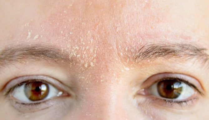 Co musíte vědět o zimě, pokud máte kožní problémy?